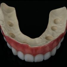 Casted partial dentures 4