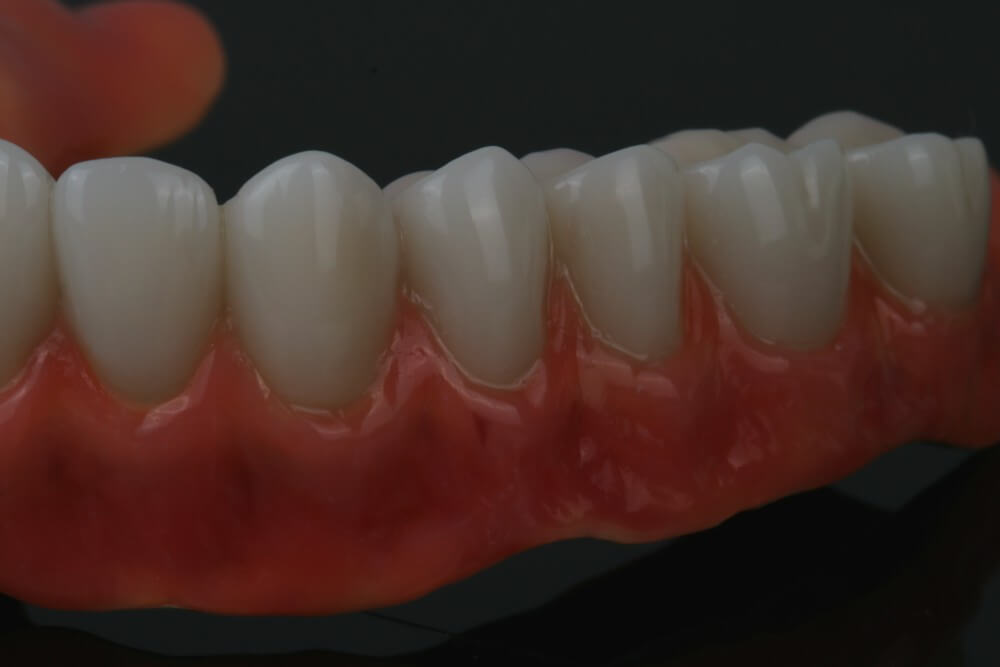 Total removable prosthesis on implants 6