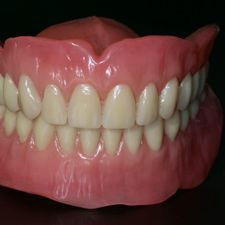 Casted partial dentures 3
