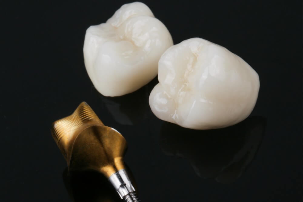 Zirconia crown on Atlantis abutment with Gold Shade coating 4