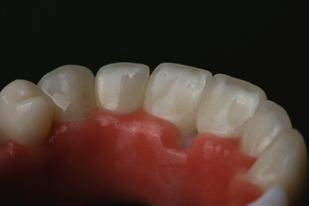 Zirconia frame and individual, full-form Emax crowns 5