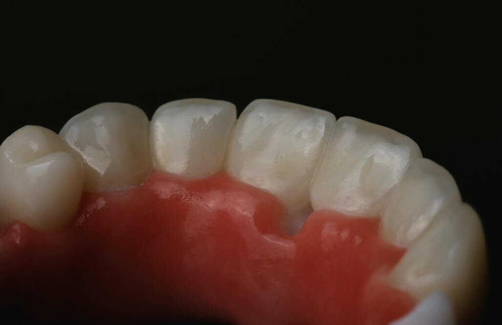 Zirconia frame and individual, full-form Emax crowns 7