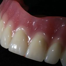 Casted partial dentures 1