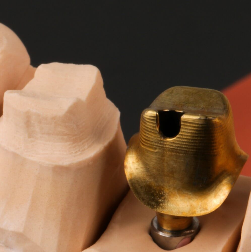 Zirconia crown on Atlantis abutment with Gold Shade coating 3