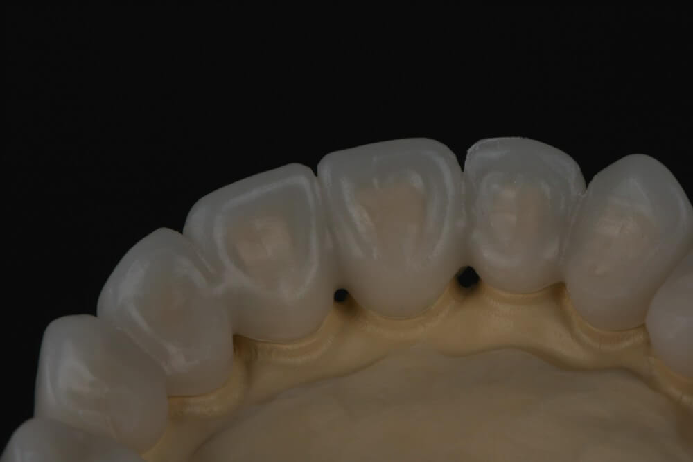 Total removable prosthesis on implants 10