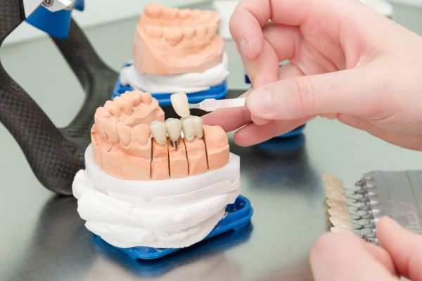 Mady Dental lab prosthetisc