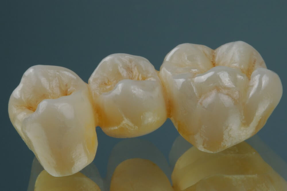 Full Shaped Zirconia Crowns 8
