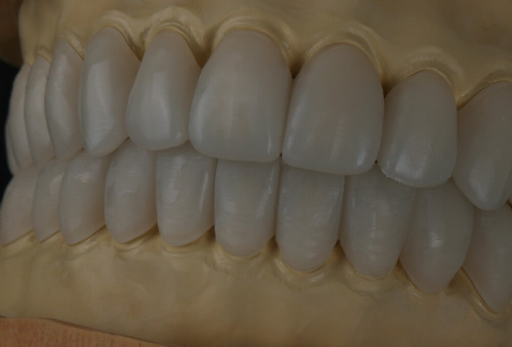Total removable prosthesis on implants 8