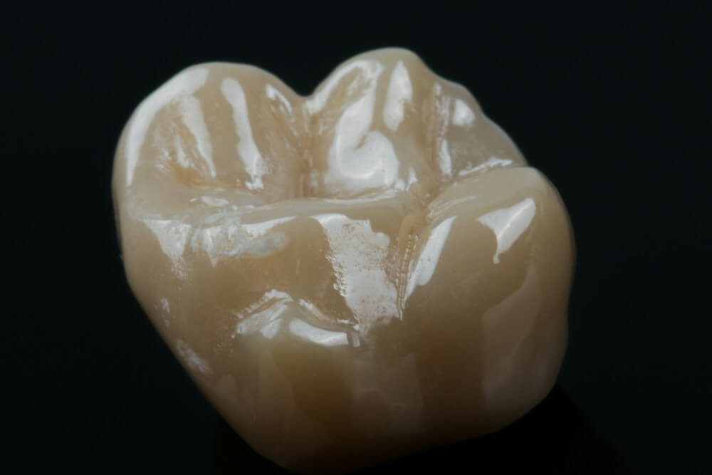 Full Shaped Zirconia Crowns 3