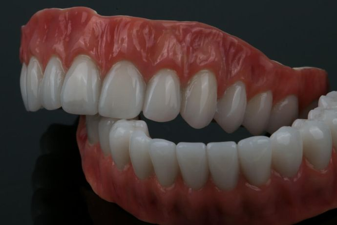 Casted partial dentures