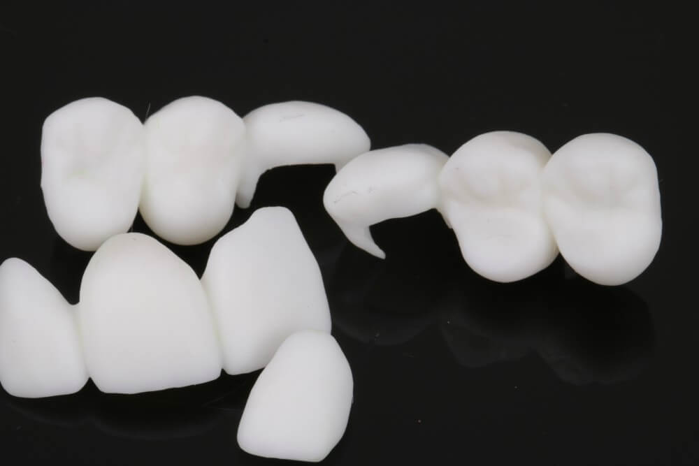 3D printed temporary crowns 3