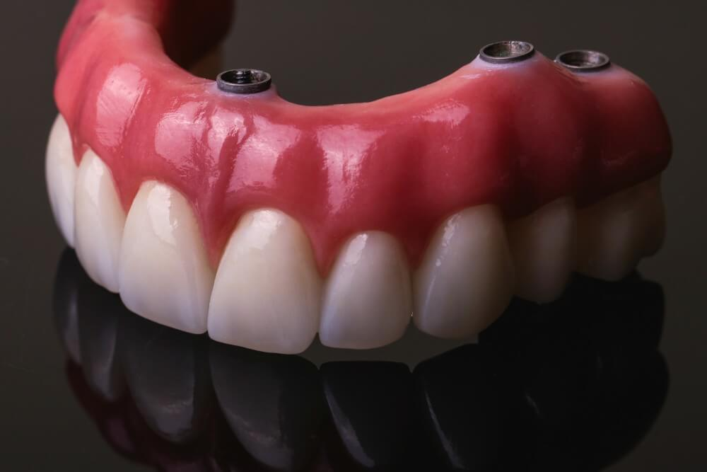 Zirconia frame and individual, full-form Emax crowns 8