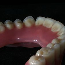 Casted partial dentures 2