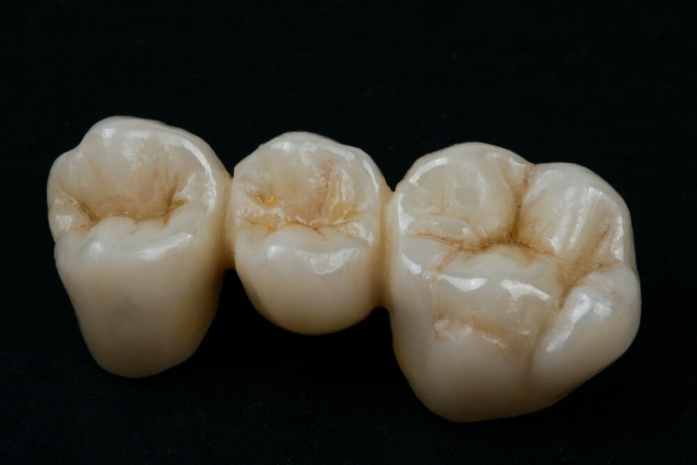 Full Shaped Zirconia Crowns 1