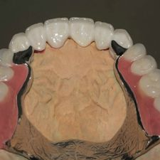 Casted partial dentures 6