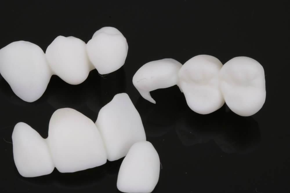 3D printed temporary crowns 5
