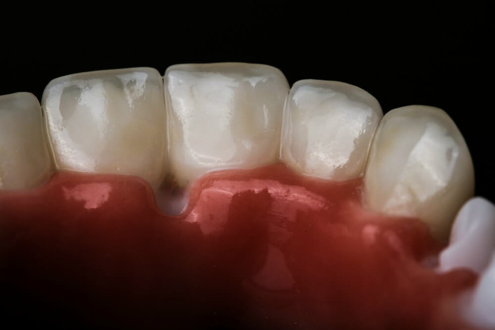 Zirconia frame and individual, full-form Emax crowns 4