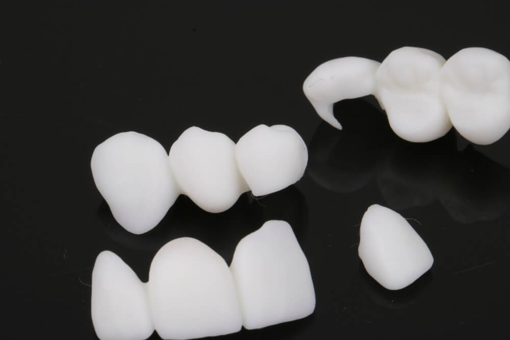 3D printed temporary crowns 1